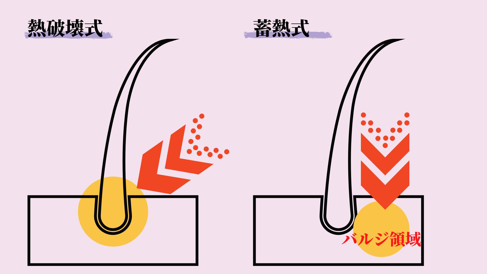 熱破壊式と蓄熱式の説明