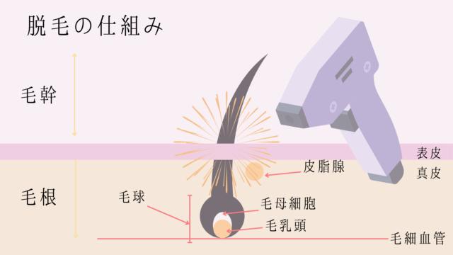 脱毛の仕組み解説